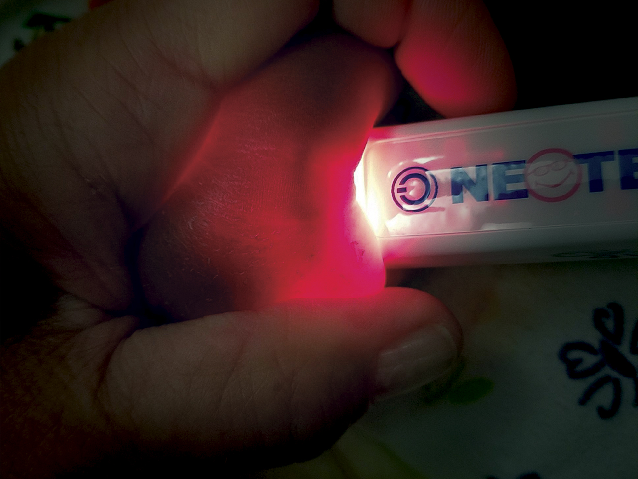 NeoGlo Transilluminator in-use on hand